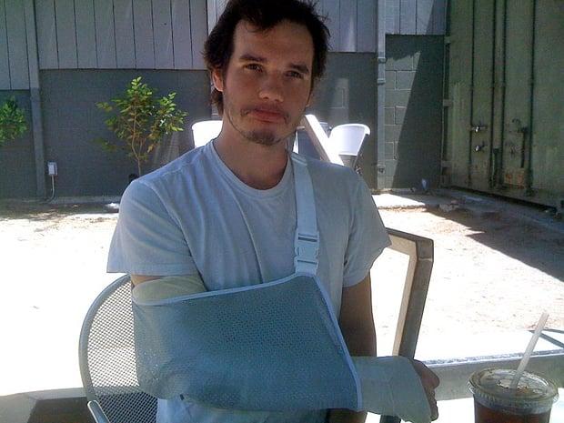 Richards_Broken_Arm-1.jpg